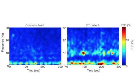Chez la plupart des participants, de fortes oscillations (entre 4 et 12 Hz) dans le cervelet. Or ces oscillations ne sont pas présentes chez les 20 témoins exempts de tremblements