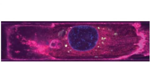VEs dérivés de l'endothélium (vert) autour des noyaux (bleu) d'un cardiomyocyte (magenta) (Visuel Disease Biophysics Group / Harvard SEAS)