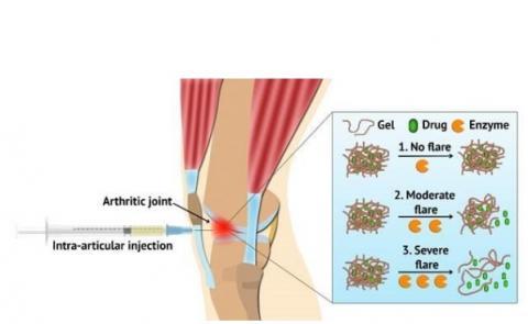 L'hydrogel injecté localement se dégrade plus rapidement en cas d'arthrite ou de crises sévères