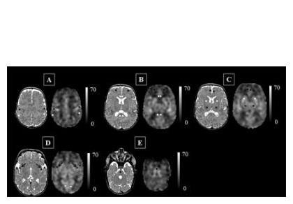 Les scientifiques aboutissent à des cartes du flux sanguin cérébral exprimé en mL / 100g / mn