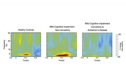 Une réponse cérébrale aberrante chez les sujets qui vont développer la maladie d'Alzheimer, mais intacte chez les patients stables