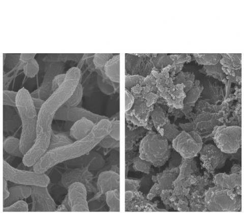 Ce nouveau polymère agrémenté de chaines protéiques, capable de cibler et tuer les bactéries Helicobacter pylori dans l'estomac sans tuer les bactéries utiles du microbiote intestinal