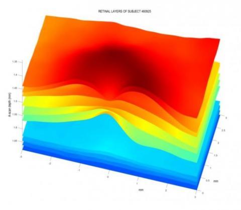 une image en 3D d'une zone carrée de 6 x 6 mm de la rétine de chaque participant a été obtenue par tomographie en cohérence optique (OCT).