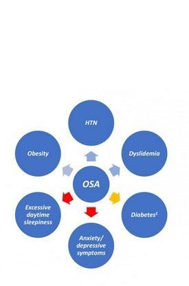 le SAOS est associé à l'obésité, à l'hypertension et à la dyslipidémie (flèches bleues), mais pas à l'anxiété ni à la dépression.