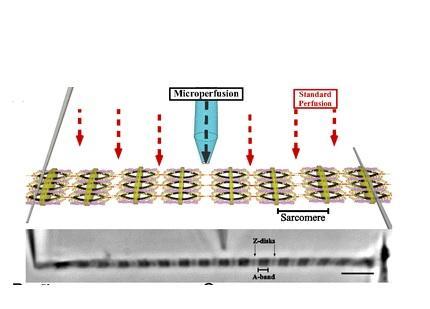 Des micro-aiguilles permettent aux chercheurs d'évaluer la force de la contraction musculaire