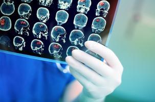 Chez les patients de moins de 65 ans notamment, l'hémorragie du SNC apparait la complication majeure fatale de COVID-19 (Visuel AdobeStock_105281083)