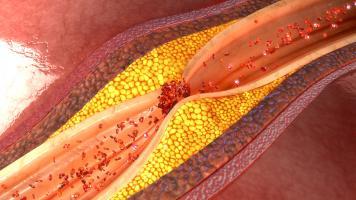 APRIL protège de l'athérosclérose ou de la formation de « plaques athérosclérotiques » et donc des principaux événements cardiovasculaires que sont les crises cardiaques et les accidents vasculaires cérébraux (AVC) (Visuel adobe Stock 113512803)