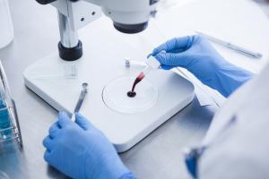 Ce  test sanguin permet d'identifier la maladie résiduelle après l'intervention chirurgicale, le risque de récidive du cancer de la vessie, et de guider le clinicien vers un traitement de précision (Visuel Adobe Stock 114589392).
