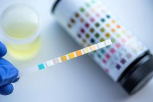 Il s'agit donc de « biopsie liquide », un mode diagnostique non invasif qui détecte ici le cancer à partir de l'ARN et d'autres métaboliques spécifiques dans l'urine