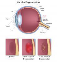 Un nouveau traitement basé sur une protéine naturelle pourrait être plus efficace que les médicaments existants pour traiter les maladies oculaires qui affectent des millions de personnes dans le monde, entraînant souvent la cécité (Visuel Adobe Stock 163290280)