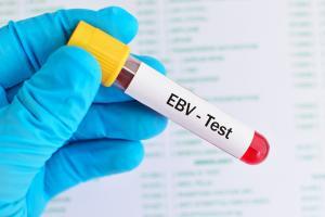 La mononucléose infectieuse également appelée « fièvre glandulaire » -en raison du gonflement des ganglions lymphatiques- est provoquée par le virus d'Epstein-Barr (VEB), un type courant de virus de l'herpès, qui affecte à peu près tout le monde au cours de la vie (Visuel Adobe Stock 198065169)