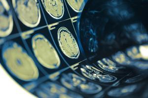 Des complications cérébrales rares avec COVID, mais en nombre élevé, compte-tenu de l'étendue de la pandémie (Visuel AdobeStock_199707478)
