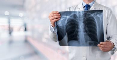 Cesser de fumer après avoir reçu un diagnostic de cancer du poumon non à petites cellules à un stade précoce peut ralentir la progression de la maladie et diminuer la mortalité (Visuel Adobe Stock 233003549)