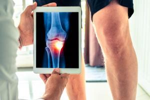 3 mois de traitement par méthotrexate seulement apportent déjà des améliorations significatives de la fonction physique et de l'inflammation chez des patients souffrant d'arthrose du genou primaire (Visuel Adobe Stock 235689003).