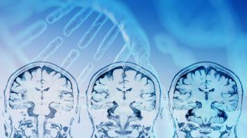 La découverte de ce nouveau gène, RBFOX1, à l'initiative de changements cérébraux précoces, et notamment de la formation de précurseurs amyloïdes et de la dégradation des synapses entre les neurones, pourrait permettre de changer le cours de la maladie (Visuel Adobe Stock 214817004)