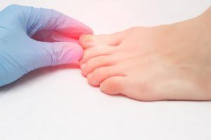 L'orteil COVID, une nouvelle manifestation caractéristique de la maladie ? (Visuel AdobeStock_242303990)
