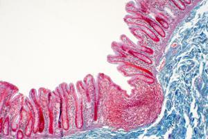 Le tofacitinib répare les défauts de perméabilité intestinale induits par l'inflammation