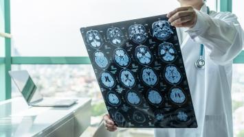 50 millions de personnes dans le monde sont atteintes de différentes formes de démences, dont la maladie d'Alzheimer, et cette prévalence pourrait atteindre 152 millions de cas en 2050 (Visuel Adobe Stock 296940799)