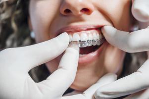 Une fois au cabinet dentaire, tous les patients partagent un même souhait, celui de pouvoir arborer un beau sourire confiant  (Adobe stock 311925482)