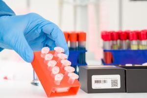 Ce « cocktail » d'échantillons en provenance d'un certain nombre d'individus permet de diagnostiquer la présence du virus SARS-CoV-2 au sein de ce groupe (Visuel AdobeStock_335755911).