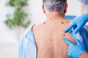 Les patients atteints de la maladie de Parkinson ont un risque accru de mélanome. Pourquoi ? (Adobe Stock 417092641)