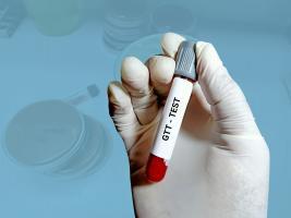 Un taux de glucose plus élevé au test de tolérance au glucose prédit une moins bonne mémoire épisodique à 10 ans (Visuel Adobe Stock 440536164).