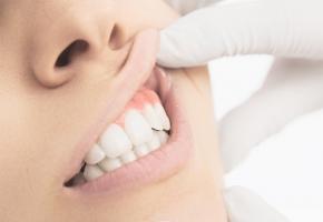 Environ 2,4 milliards de personnes -soit un tiers de la population mondiale- souffrent de caries dentaires non traitées  (Visuel Adobe Stock 84742781)