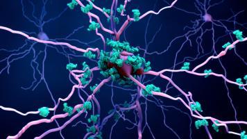 L'étude confirme un début précoce et en profondeur de la maladie d'Alzheimer dans le cerveau