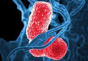 Si le contact humain est bien responsable de 90% de la propagation d'une espèce de bactérie résistante aux antibiotiques, Klebsiella pneumoniae (visuel), il ne l'est qu'à concurrence de moins de 60% pour la propagation d'autres espèces bactériennes.