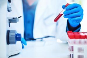 Le test sanguin qui recherche un biomarqueur appelé chaîne légère des neurofilaments permet de prédire comment va évoluer la SEP (Visuel Fotolia)