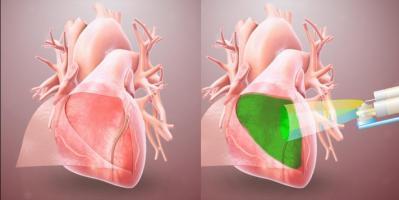 Un hydrogel qui forme une barrière pour empêcher le tissu cardiaque d'adhérer aux tissus environnants après une chirurgie (Visuel Université de Californie - San Diego)