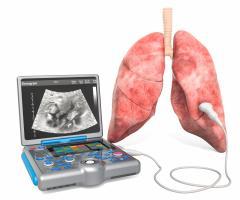L'échographie pulmonaire en complément du scanner précise la sévérité et la durée de la maladie (Visuel Adobe Stock 263779362)