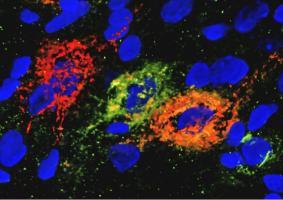Ces neurones glucorégulateurs, présents dans l'éminence médiane du noyau arqué hypothalamique du cerveau, enchevêtrés dans des matrices extracellulaires appelées réseaux périneuronaux peuvent avoir un effet de régulation de la glycémie (Visuel Courtesy of KImberly Alonge/Schwartz Lab/UW Medicine Diabetes Research Institute)