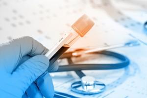 Des taux très élevés de lipoprotéines de haute densité peuvent être associés à un risque accru de crise cardiaque et de décès