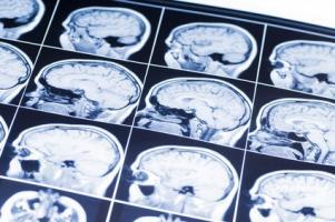C'est la découverte du rôle majeur de certaines anomalies de vaisseaux sanguins dans le cerveau dans l'apparition de cette maladie