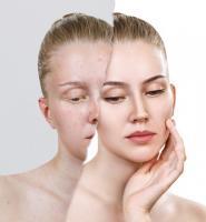 L'acné est liée à un risque très accru de dépression