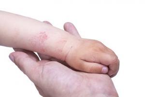 Les crevasses cutanées liées à l'eczéma favorisent les maladies allergiques de tous types.