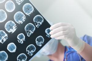 2 protéines clés : l'une TIA-1, « empêche » le cerveau sain de devenir épileptique et une autre, COX-2 régule le seuil électrique au-delà duquel les crises se déclenchent