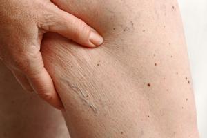 Vieillissement, obésité, deux conditions finalement très similaires ?
