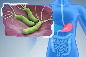 Chez certaines personnes, les infections à H. pylori augmentent le risque de cancer gastrique, ainsi que d'autres maladies telles que les ulcères gastroduodénaux et la gastrite (Visuel Fotolia)