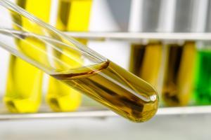 Un régime enrichi en huile d'acébuchine réduit le stress oxydatif et la pression artérielle, notamment au niveau rétinien tels que produits par l'hypertension (Visuel Adobe Stock 299937062)