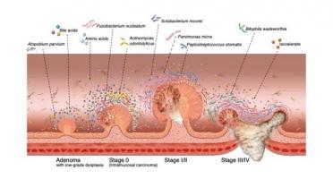 L'intestin « le sent bien » : certains changements du microbiome intestinal peuvent être des signes précoces du cancer colorectal