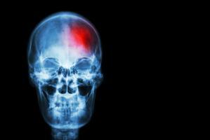 L'inflammation dans le cerveau peut être plus largement impliquée dans les démences qu'on ne le pensait
