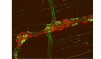 Les mêmes mutations génétiques - découvertes à la fois dans le cerveau et dans les intestins - pourraient être la cause commune des problèmes intestinaux et des dysfonctionnements cérébraux constatés dans l'autisme.