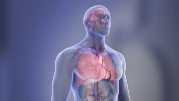 Plus de 40% des adultes sans maladie cardiaque connue présentent des dépôts graisseux dans les artères, ce qui suggère un certain degré d'athérosclérose et un risque accru de maladie et d'événement cardiovasculaire (Visuel AHA)