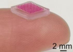 Ce patch « microneedle » ou microaiguilles va permettre de délivrer des antibiotiques localement par voie cutanée et de limiter ainsi les traitements systémiques (Visuel Institut Karolinska ) .