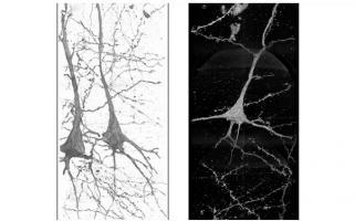Les structures de ces neurones sont différentes et uniques chez chaque patient schizophrène, ce qui suggère que la maladie est associée à ces différences structurelles (Visuel Ryuta Mizutani)