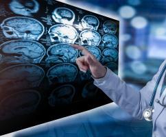 Sans envahir directement le cerveau ou les nerfs, le SARS-CoV-2 provoque des lésions neurologiques potentiellement dommageables chez environ 1 patient infecté sur 7 (Visuel Adobe Stock 232293135)