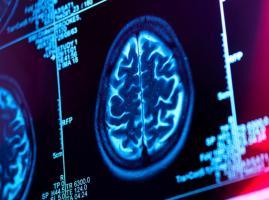 Avec le recours à l'IA, les techniques de stimulation cérébrales pourraient également venir au secours des personnes atteintes de maladies psychiatriques et de lésions cérébrales directes, telles que celles associées aux accidents vasculaires cérébraux (AVC) (Visuel NIH- Abott).