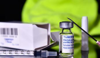 40% des formes de TB sont aujourd'hui résistantes aux traitements de première ligne (Visuel Adobe Stock 45784898)